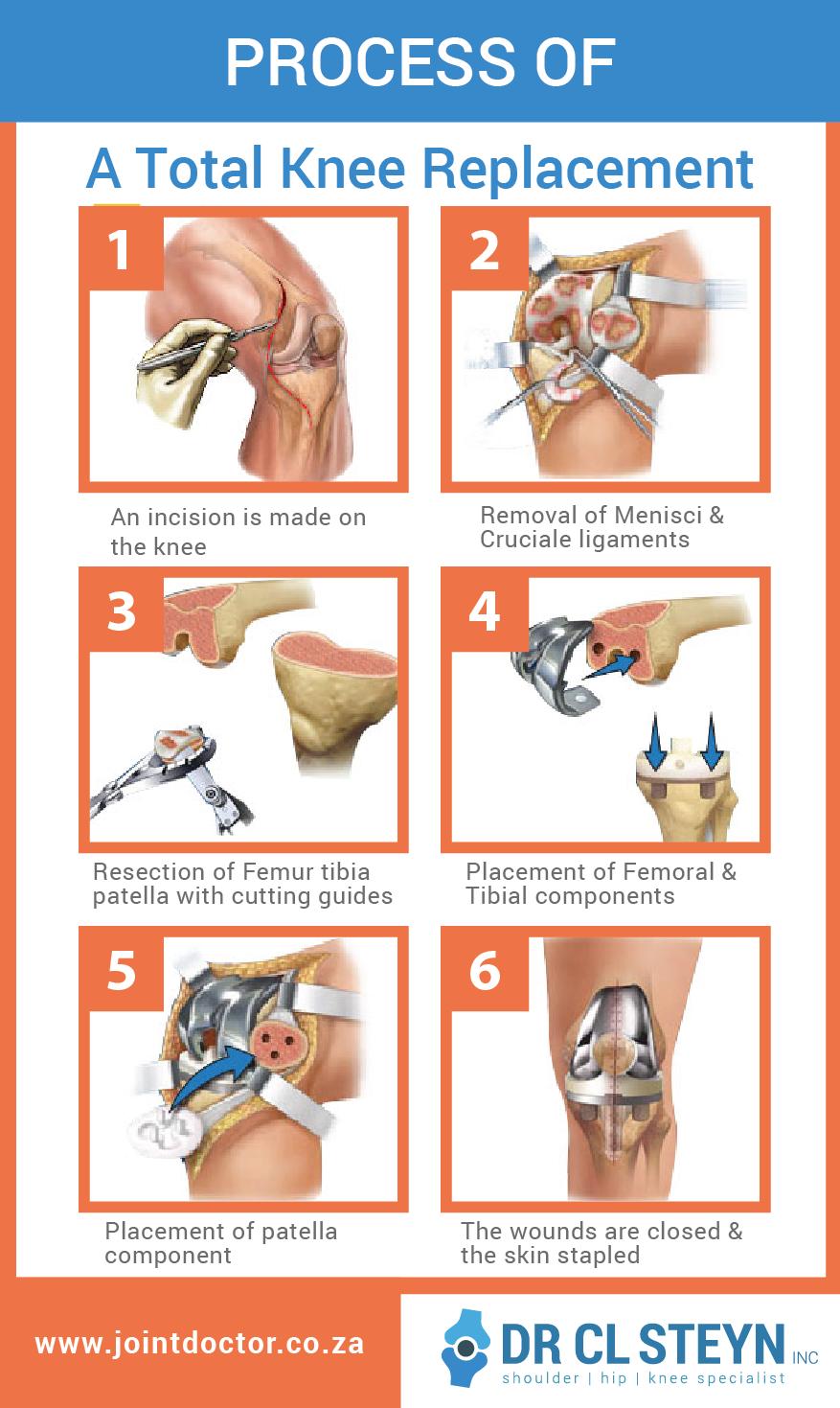 Procedures Layout-03