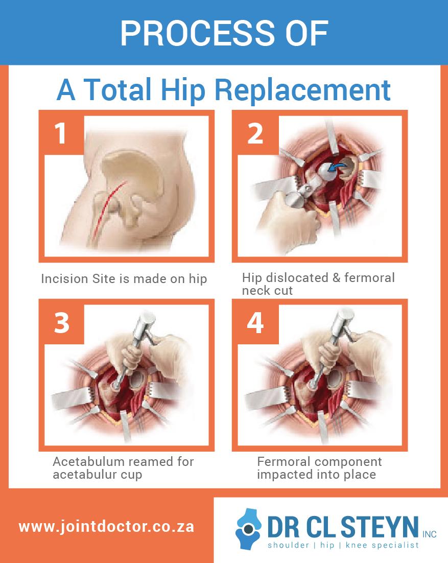 Hip Arthroplasty Surgery