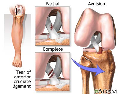 tear of knee ligament