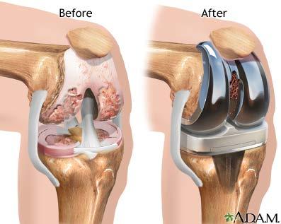 knee joint replacement procedure