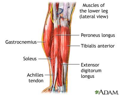 knee ache