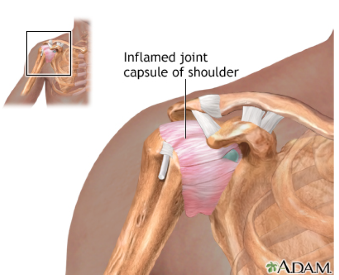 inflamed joint capsule of shoulder